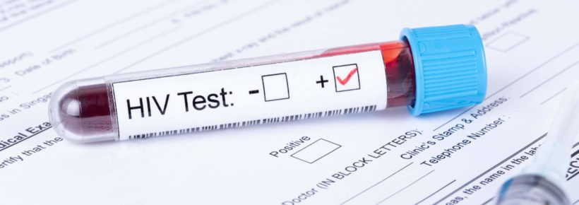 HIV positive test sample with medical forms